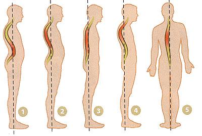 Как лечить перелом ребра со смещением