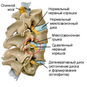 Гимнастика для грыжи шейно грудного отдела бубновского