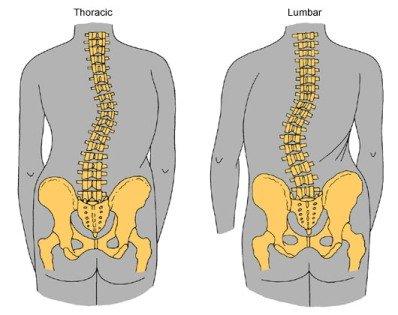 Признаки грудного и поясничного сколиоза